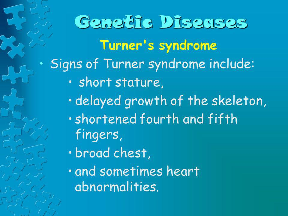 Genetic Diseases Turner s syndrome Signs of Turner syndrome include: