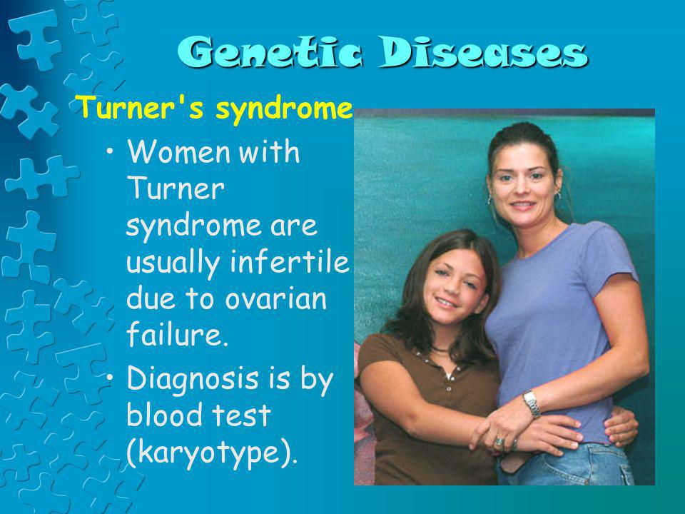 Genetic Diseases Turner s syndrome