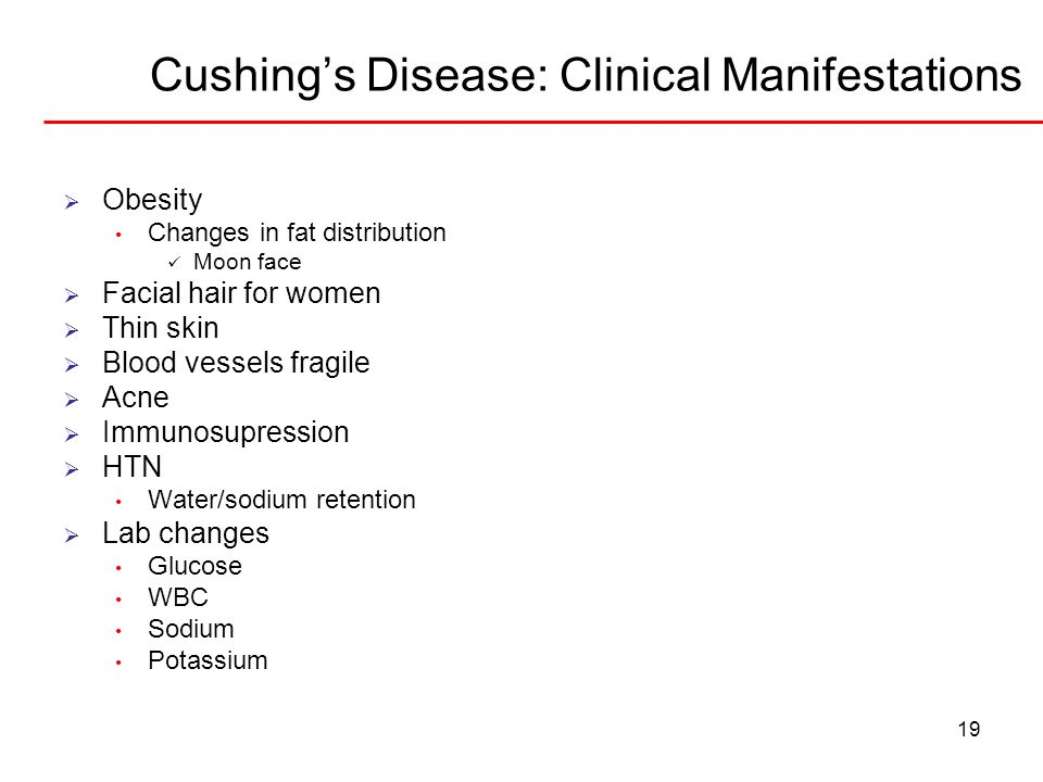 Cushing's Disease: Clinical Manifestations