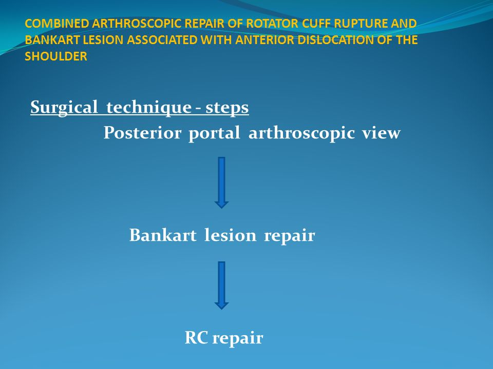 Surgical technique - steps Posterior portal arthroscopic view