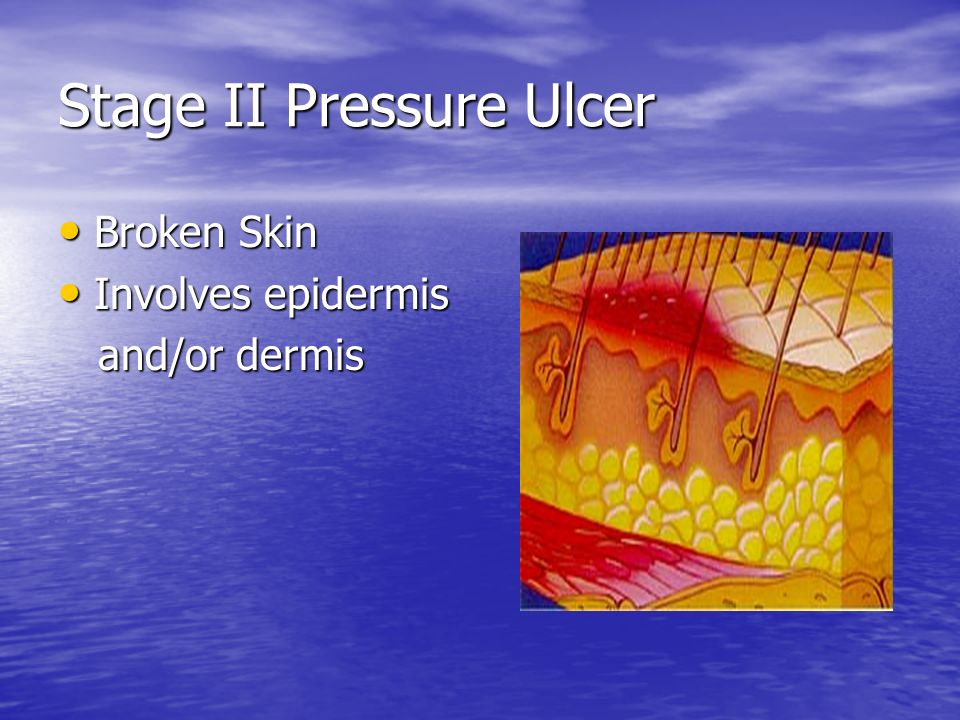 Stage II Pressure Ulcer