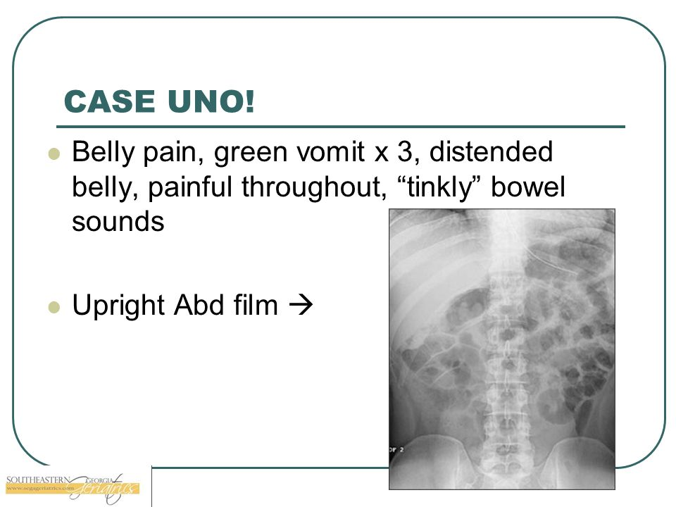 CASE UNO. Belly pain, green vomit x 3, distended belly, painful throughout, tinkly bowel sounds.