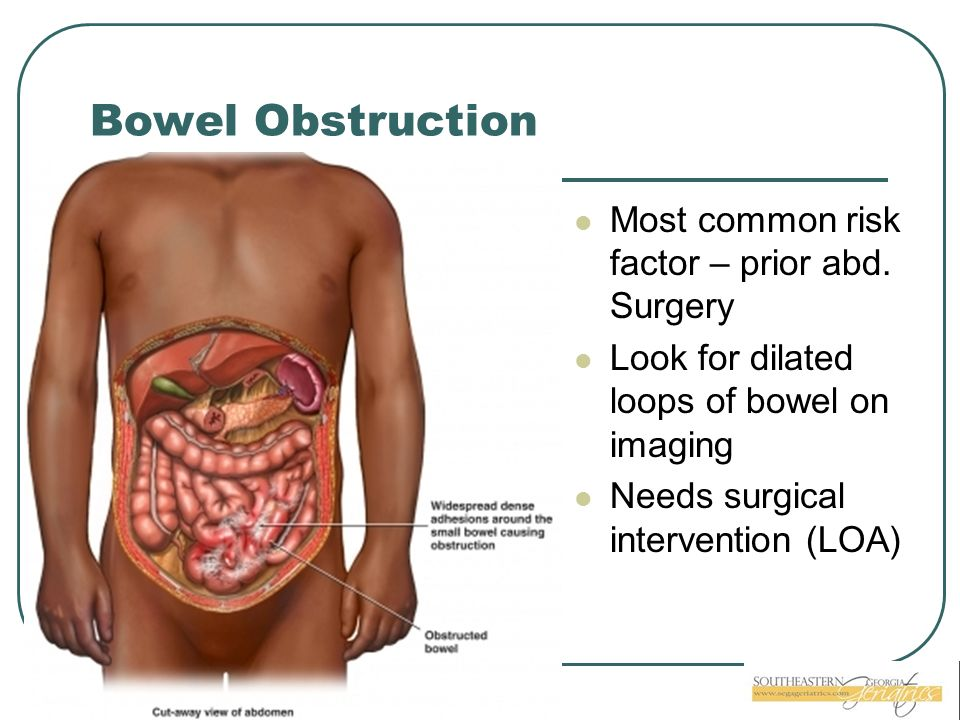 Bowel Obstruction Most common risk factor – prior abd. Surgery