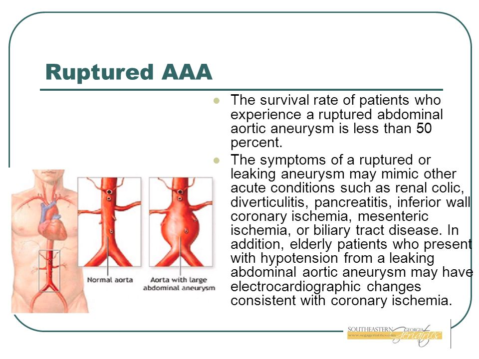 Ruptured AAA The survival rate of patients who experience a ruptured abdominal aortic aneurysm is less than 50 percent.