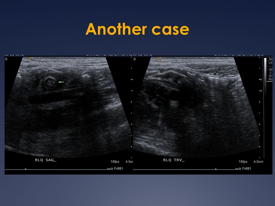 Another case 13 year old girl Ultrasound Positive Appy