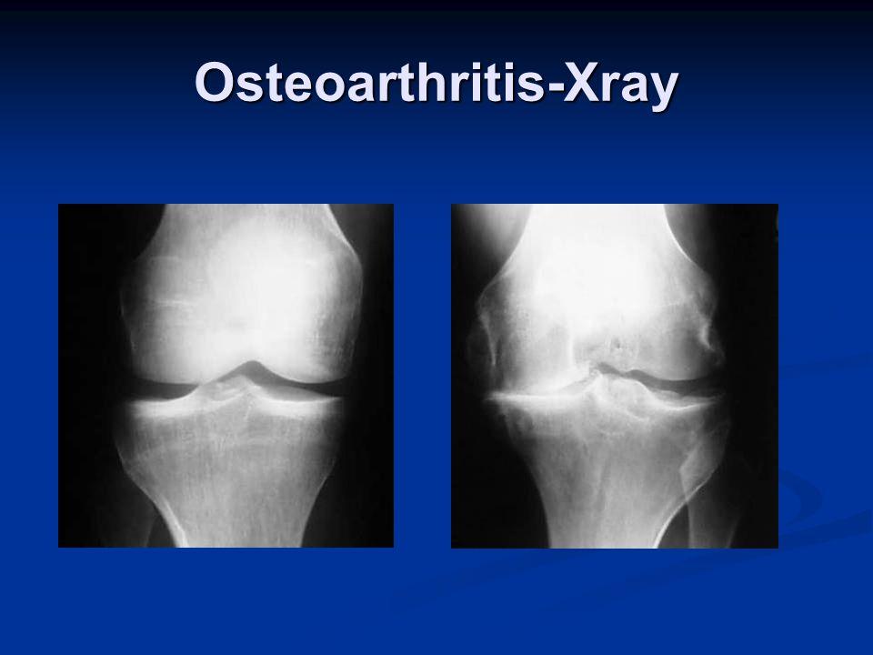 Osteoarthritis-Xray