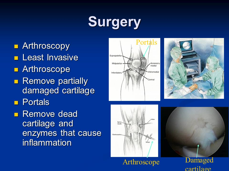 Surgery Arthroscopy Least Invasive Arthroscope