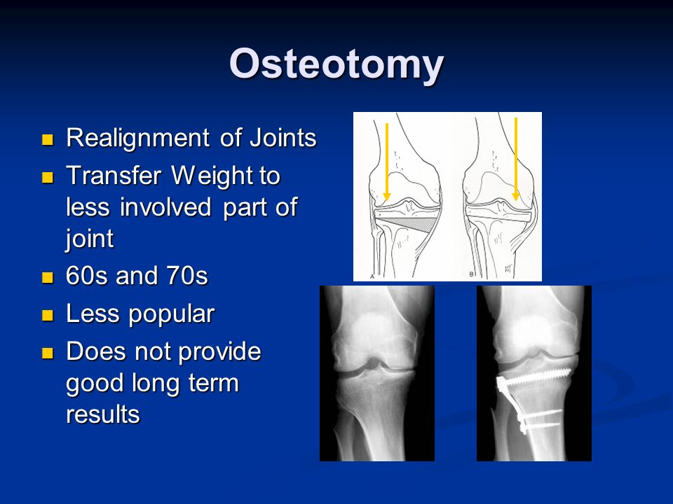 Osteotomy Realignment of Joints