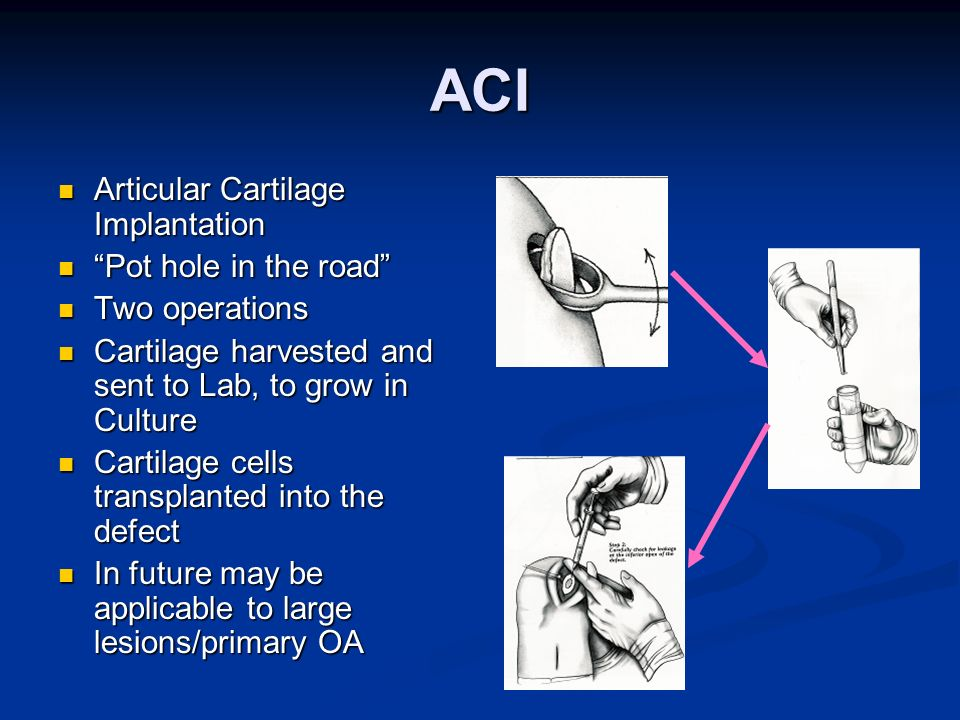 ACI Articular Cartilage Implantation Pot hole in the road