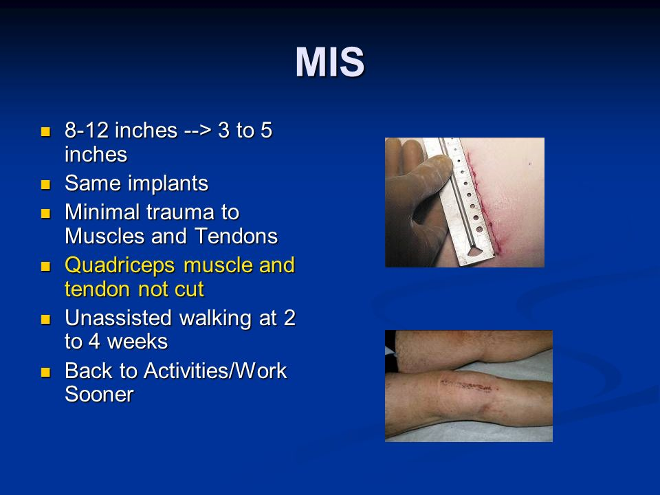MIS 8-12 inches --> 3 to 5 inches Same implants
