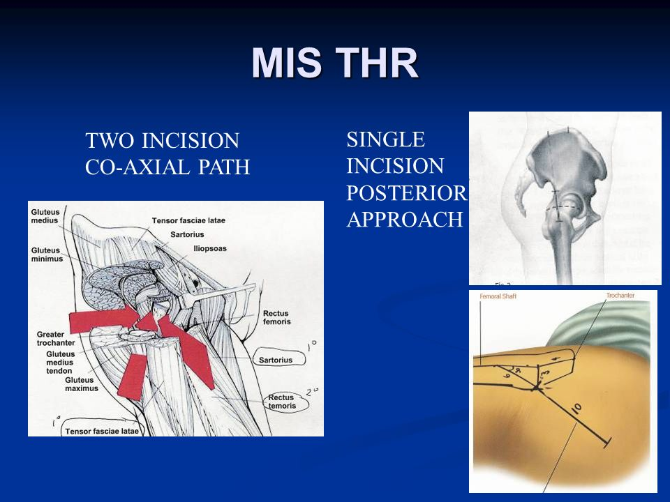 MIS THR TWO INCISION CO-AXIAL PATH SINGLE INCISION POSTERIOR APPROACH