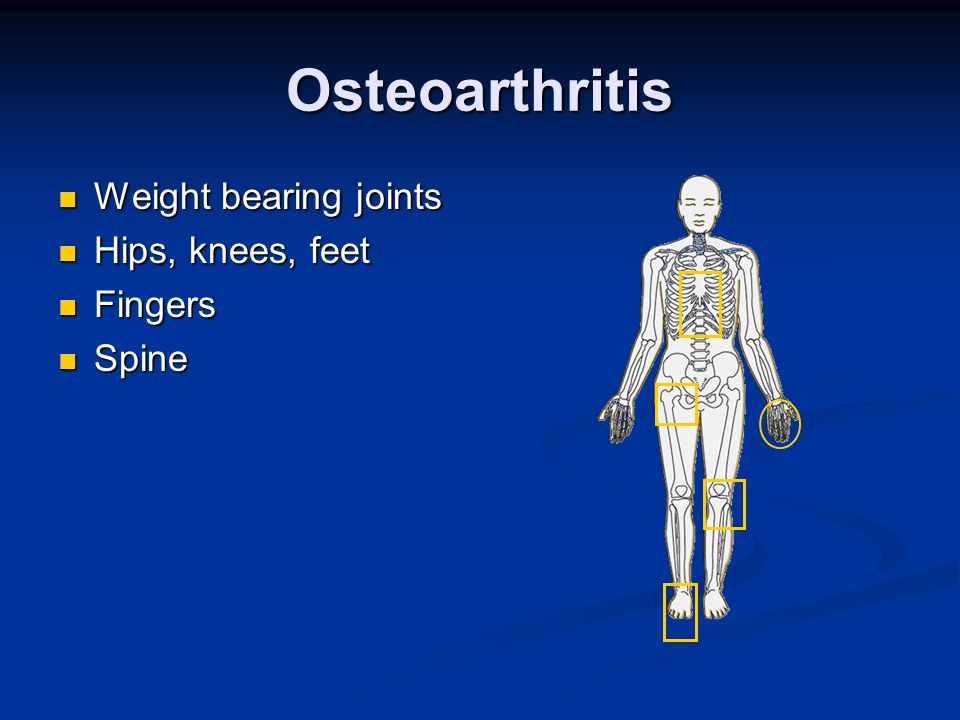 Osteoarthritis Weight bearing joints Hips, knees, feet Fingers Spine