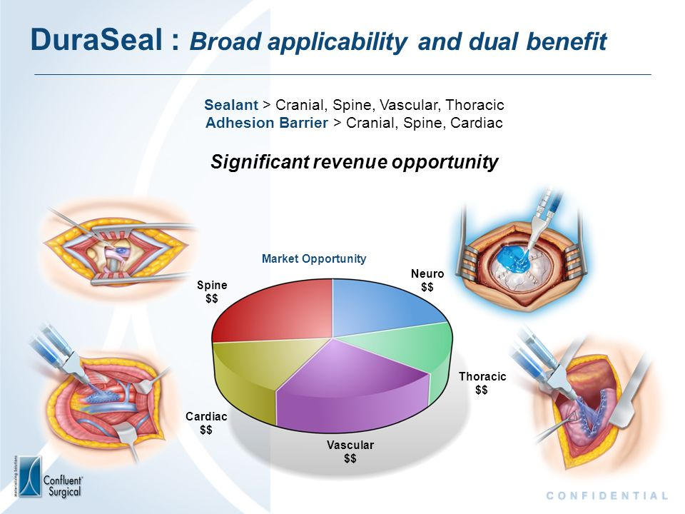 DuraSeal : Broad applicability and dual benefit