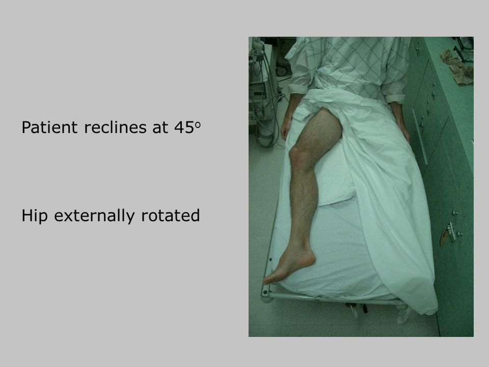 Patient reclines at 45o Hip externally rotated