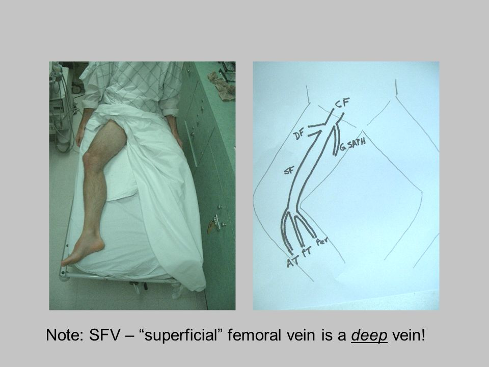 Note: SFV – superficial femoral vein is a deep vein!
