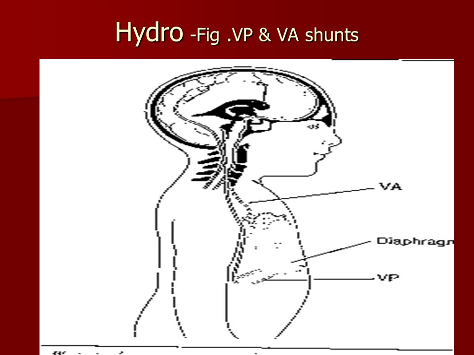 Hydro -Fig .VP & VA shunts