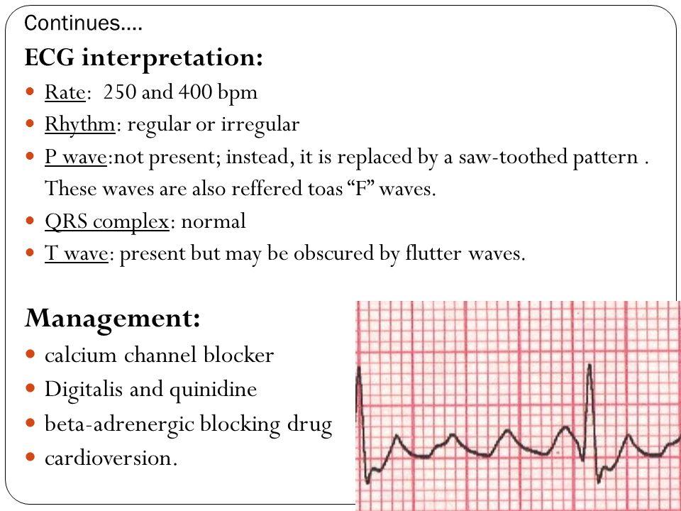 Management: ECG interpretation: calcium channel blocker
