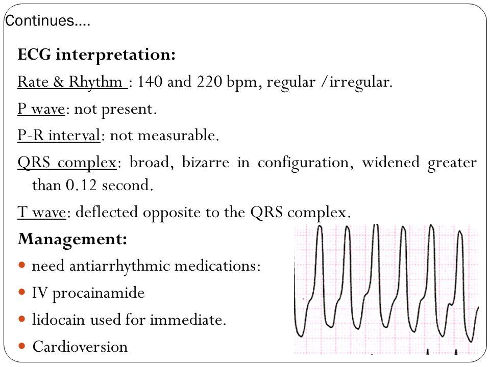 Rate & Rhythm : 140 and 220 bpm, regular /irregular.