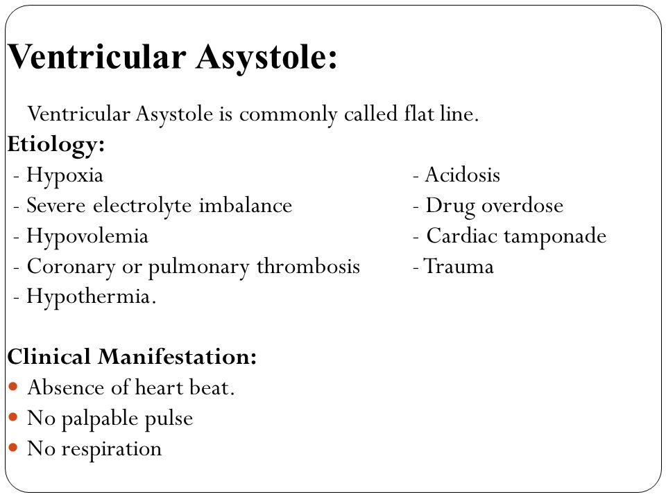 Ventricular Asystole: