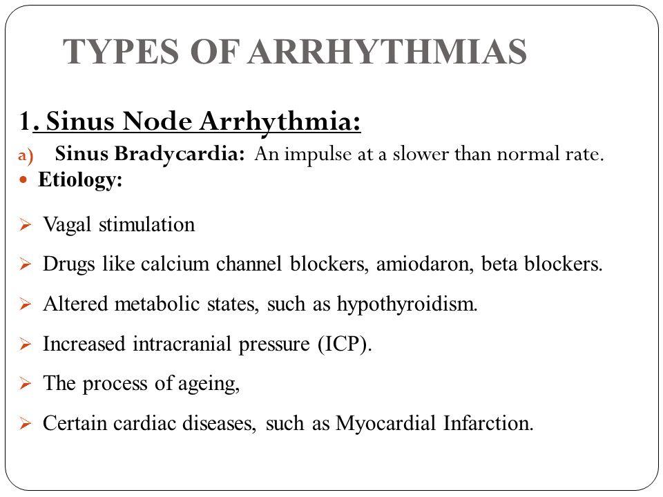 TYPES OF ARRHYTHMIAS 1. Sinus Node Arrhythmia: