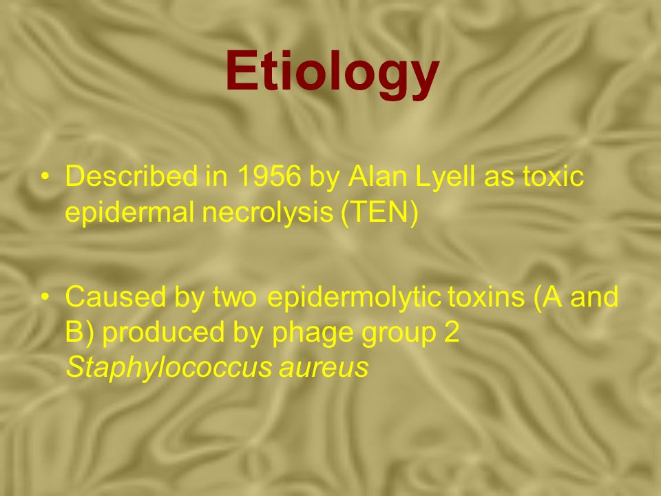 Etiology Described in 1956 by Alan Lyell as toxic epidermal necrolysis (TEN)