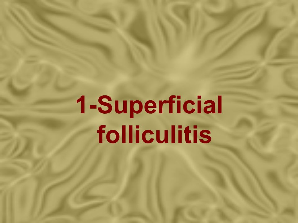1-Superficial folliculitis