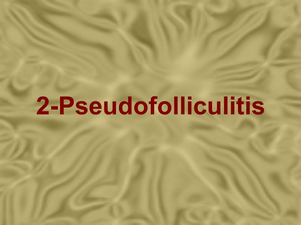 2-Pseudofolliculitis