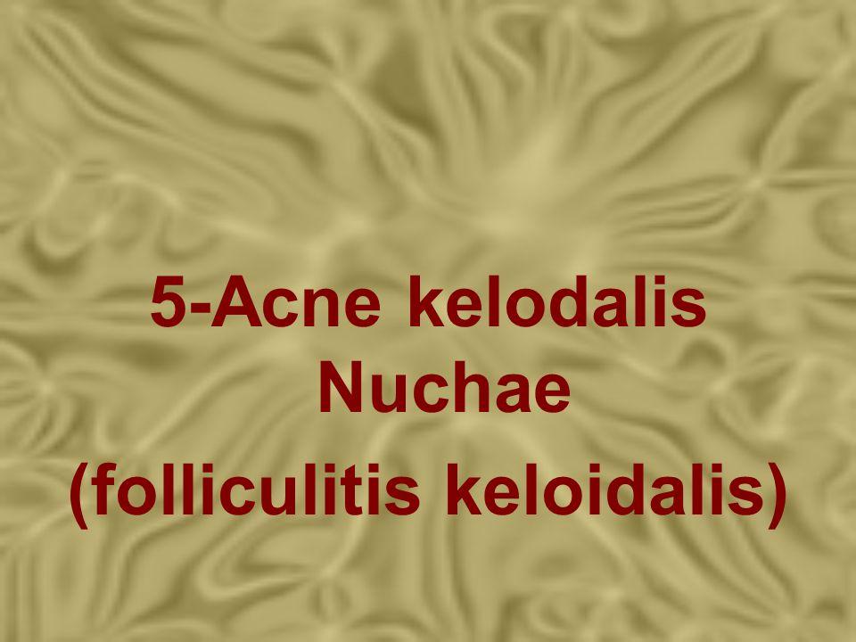 5-Acne kelodalis Nuchae (folliculitis keloidalis)