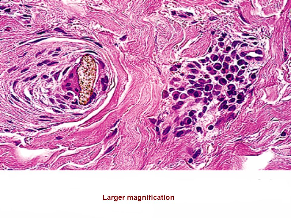Larger magnification