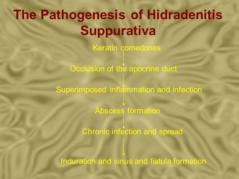 The Pathogenesis of Hidradenitis Suppurativa