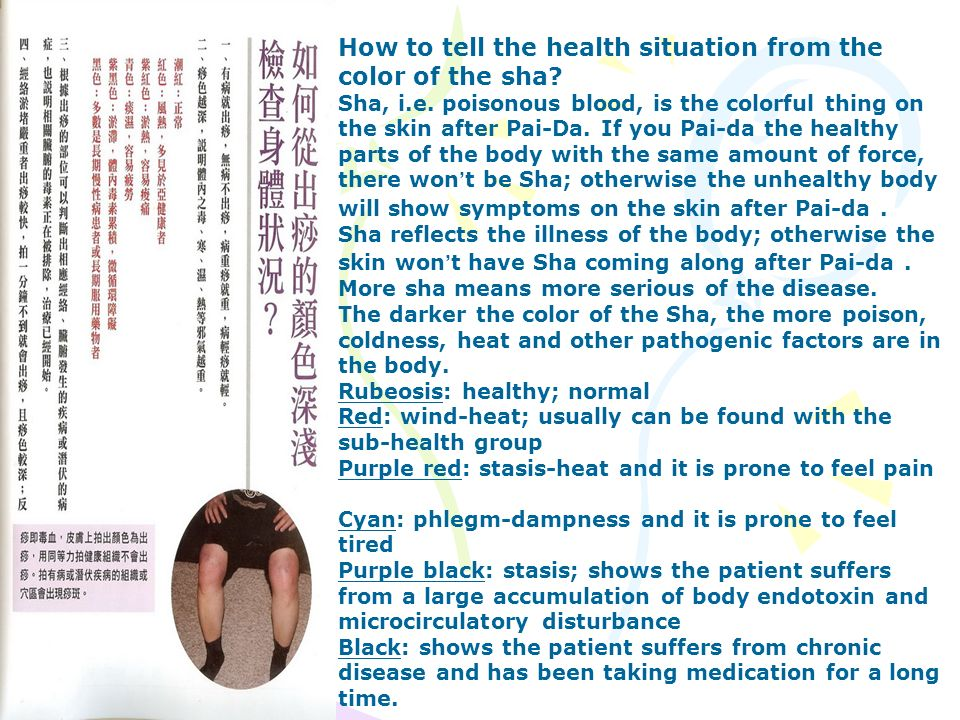 How to tell the health situation from the color of the sha