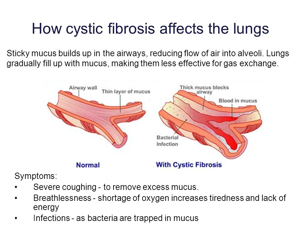 How cystic fibrosis affects the lungs