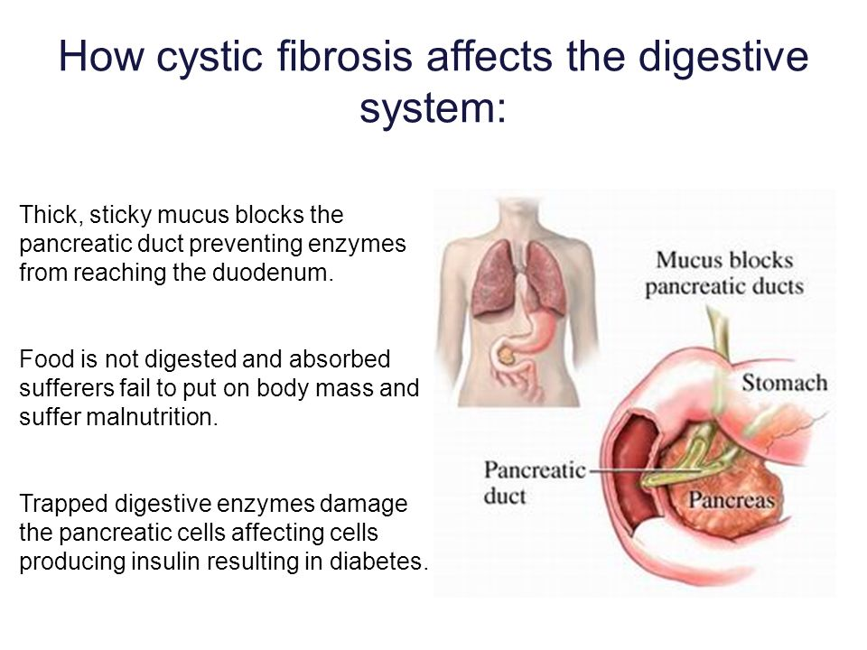 How cystic fibrosis affects the digestive system: