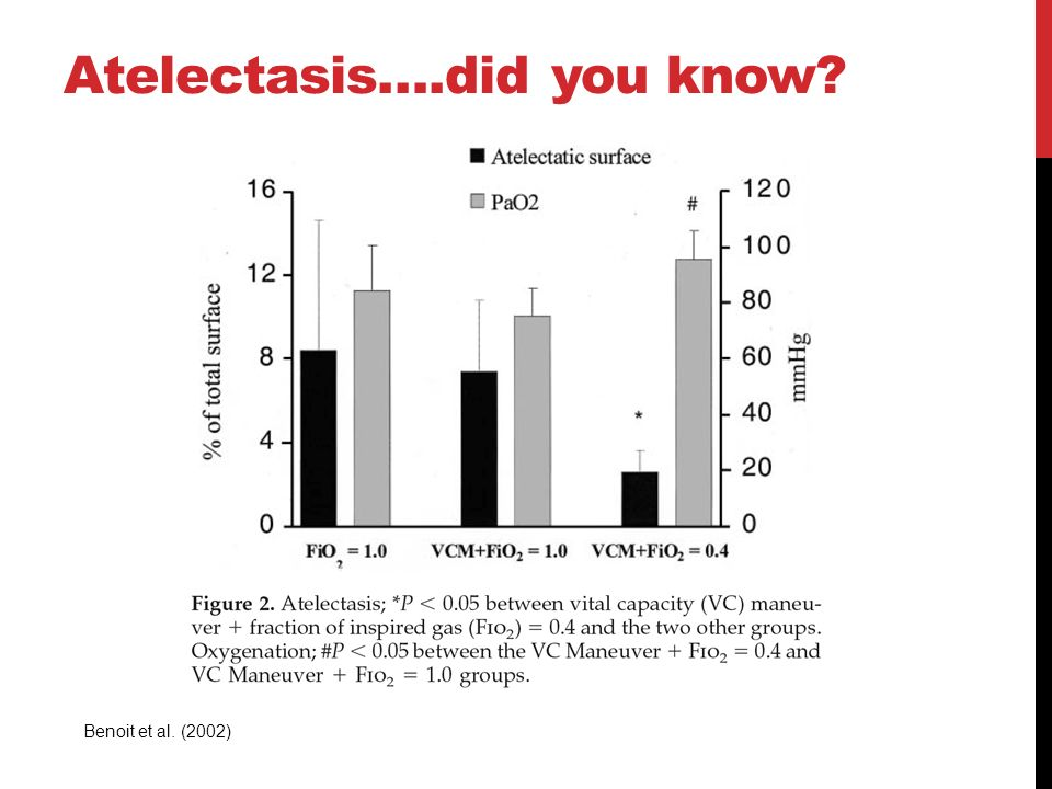 Atelectasis….did you know