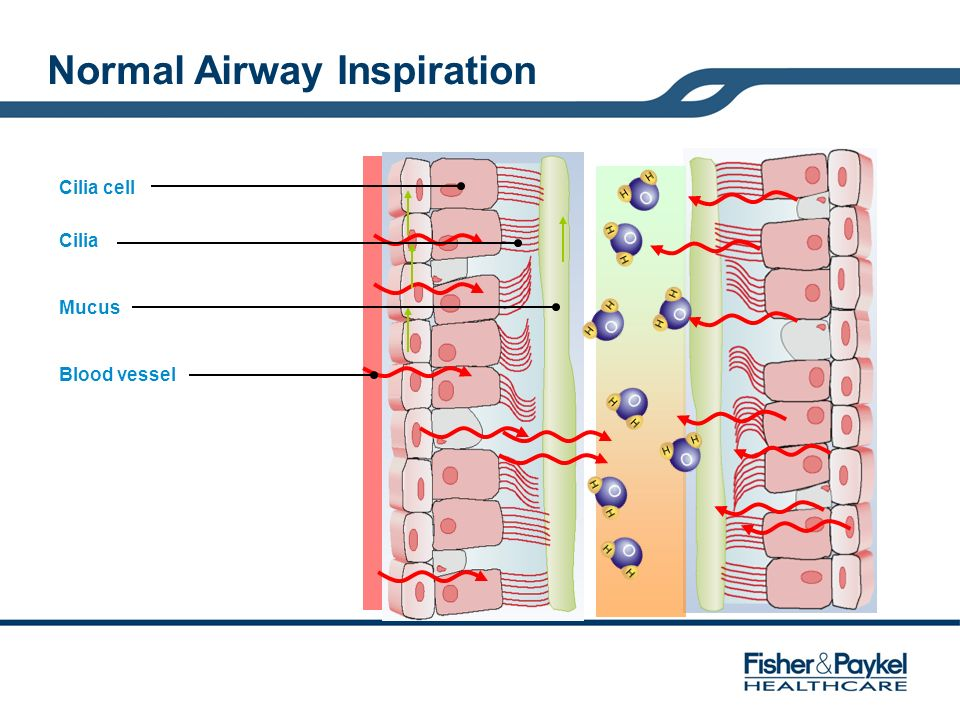 Normal Airway Inspiration