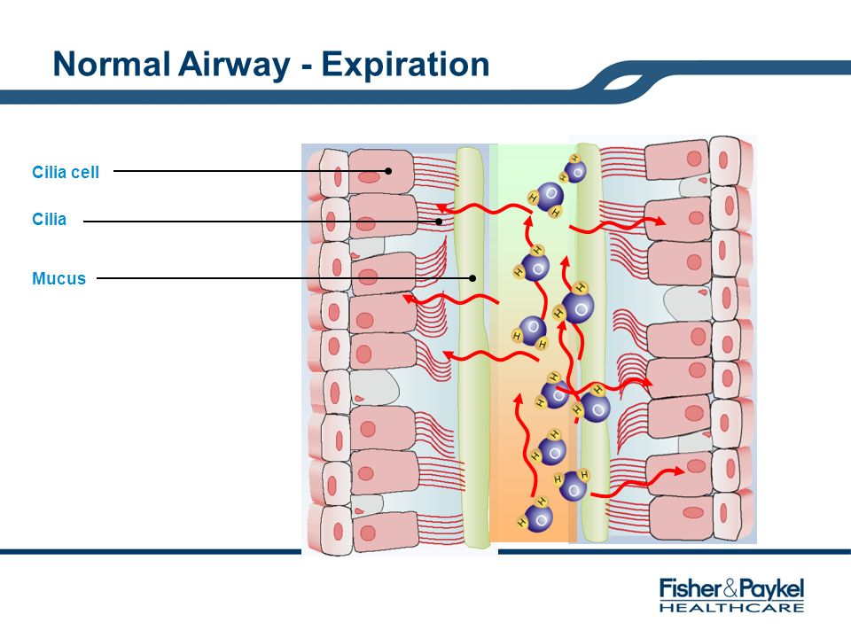 Normal Airway - Expiration
