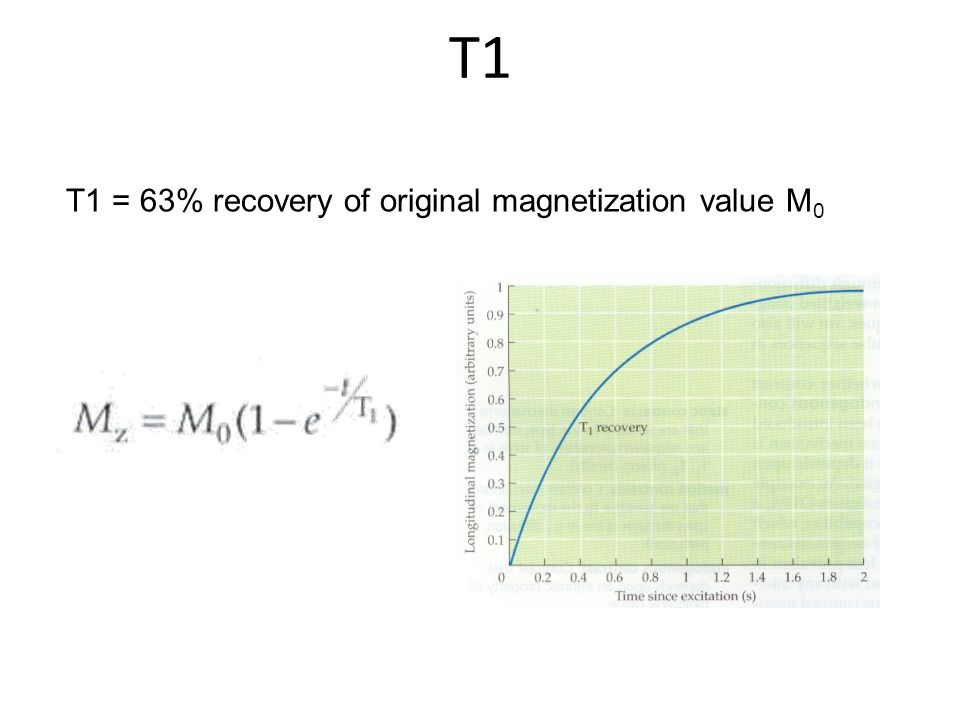 T1 T1 = 63% recovery of original magnetization value M0