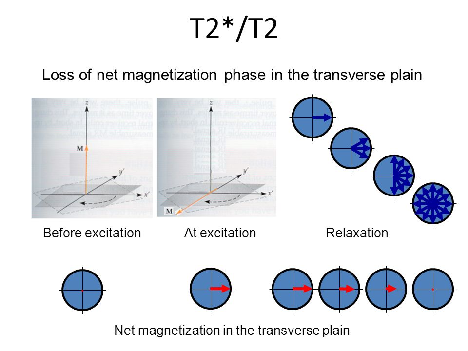 Loss of net magnetization phase in the transverse plain