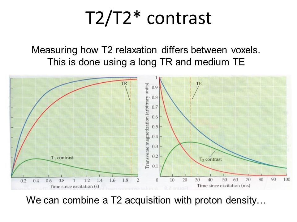 We can combine a T2 acquisition with proton density…