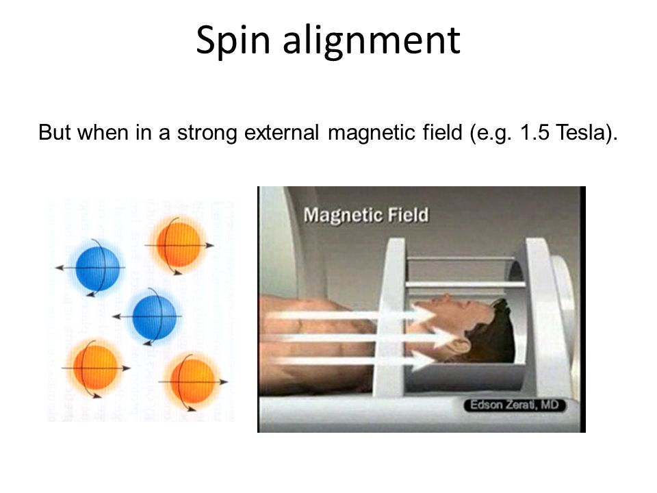 But when in a strong external magnetic field (e.g. 1.5 Tesla).
