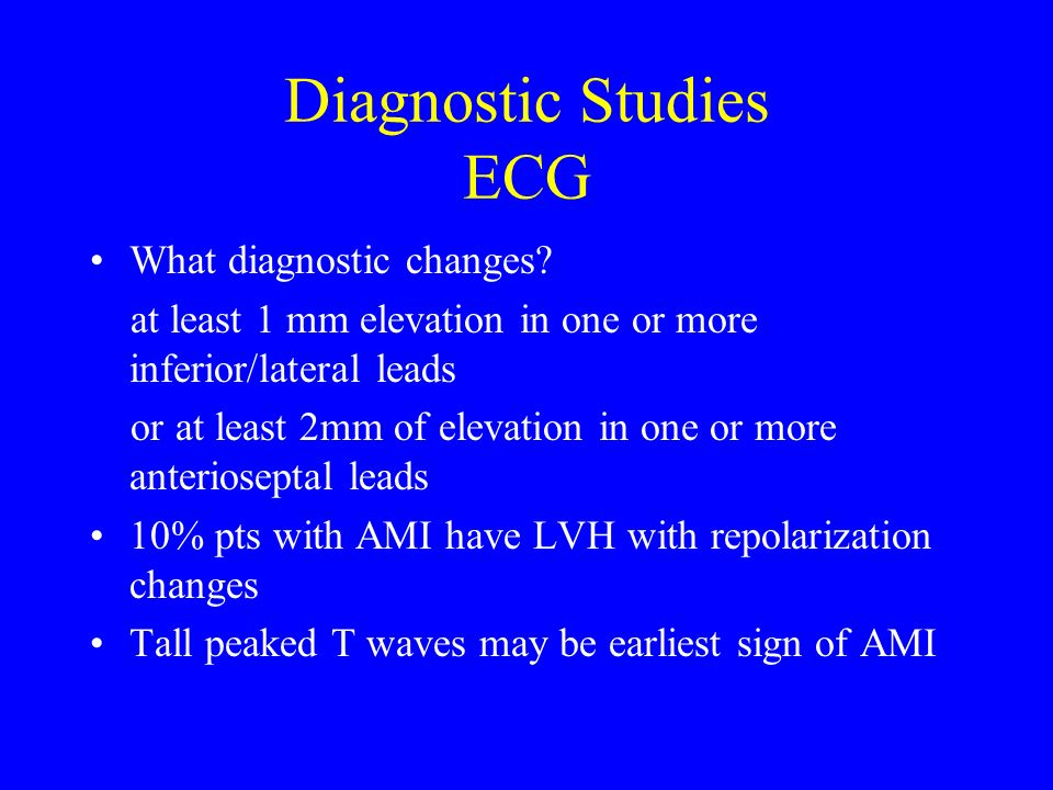 Diagnostic Studies ECG