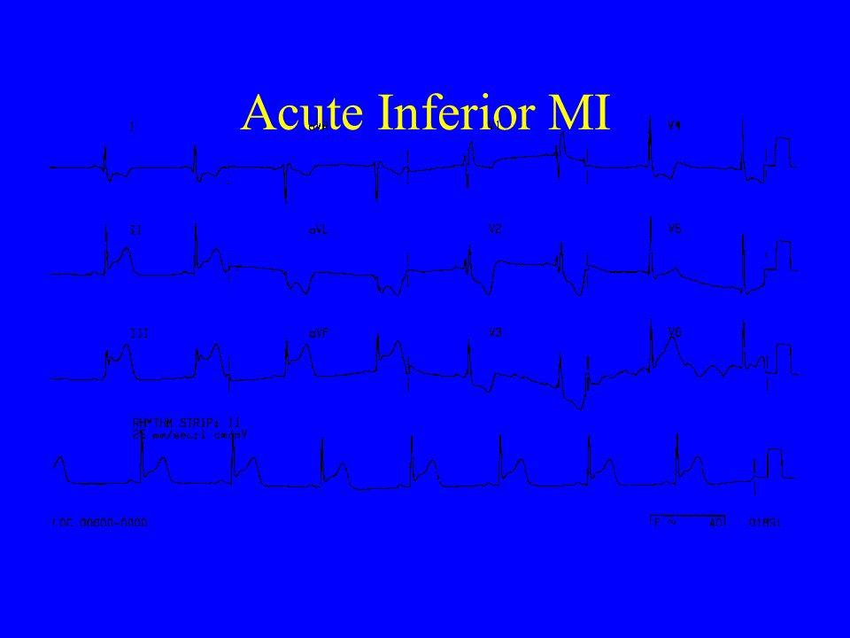Acute Inferior MI
