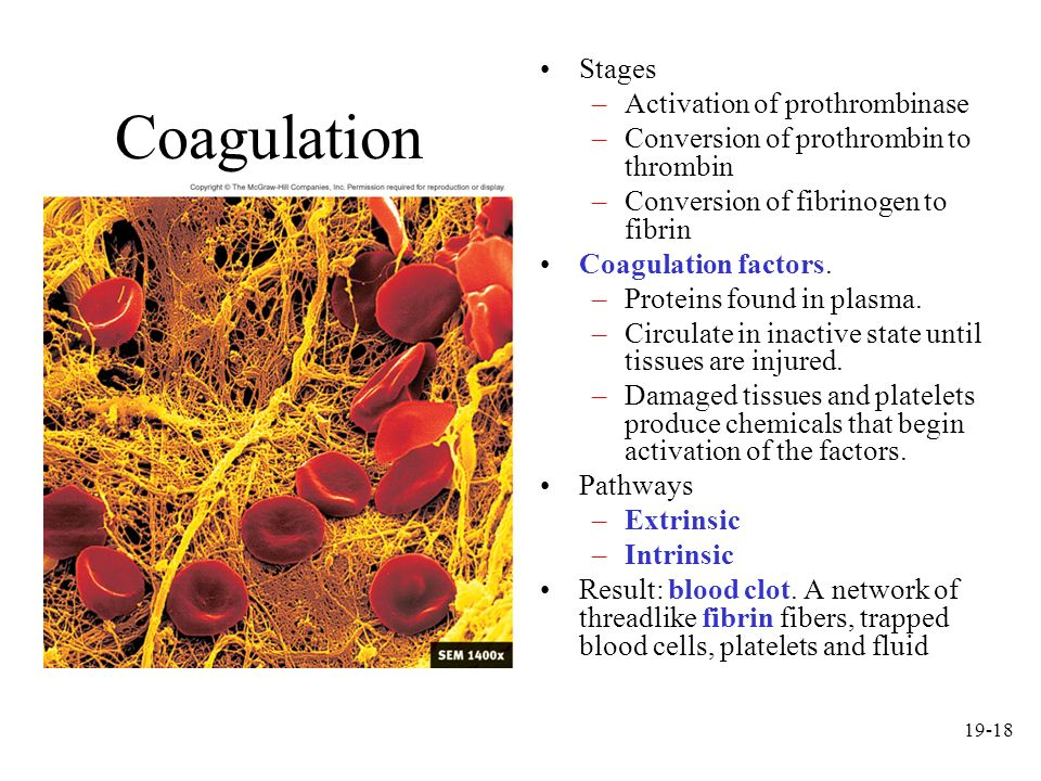 Coagulation Stages Activation of prothrombinase