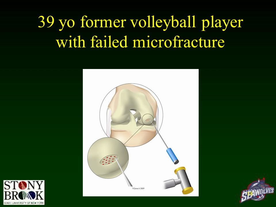 39 yo former volleyball player with failed microfracture
