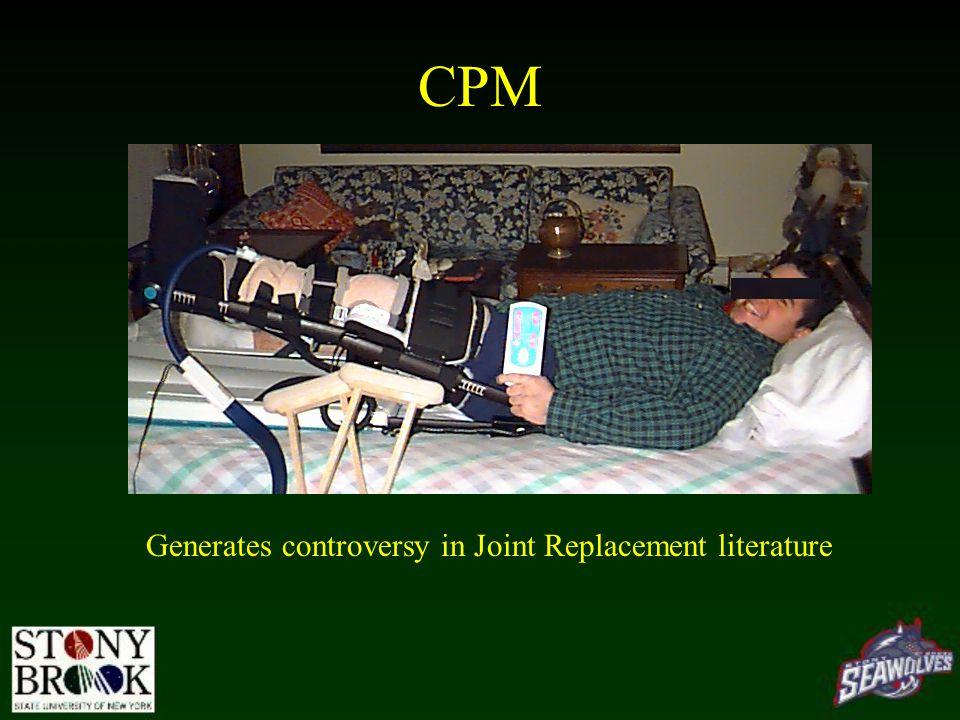 CPM Generates controversy in Joint Replacement literature