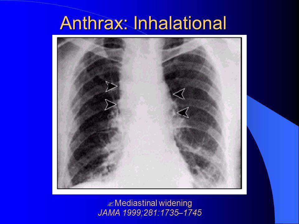 Anthrax: Inhalational