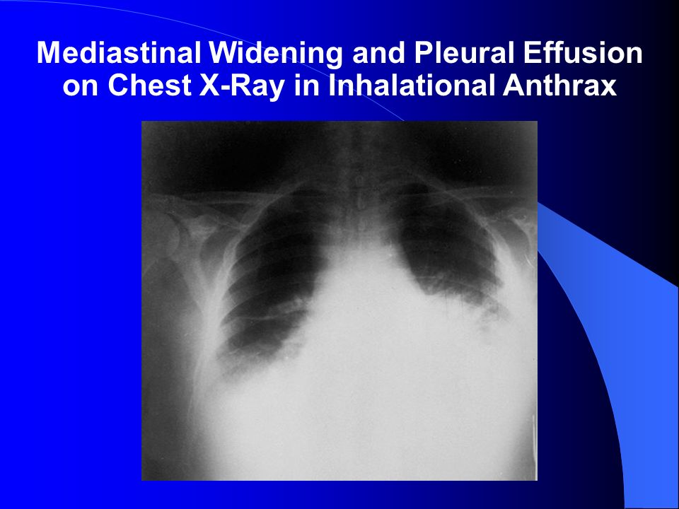 Mediastinal Widening and Pleural Effusion on Chest X-Ray in Inhalational Anthrax