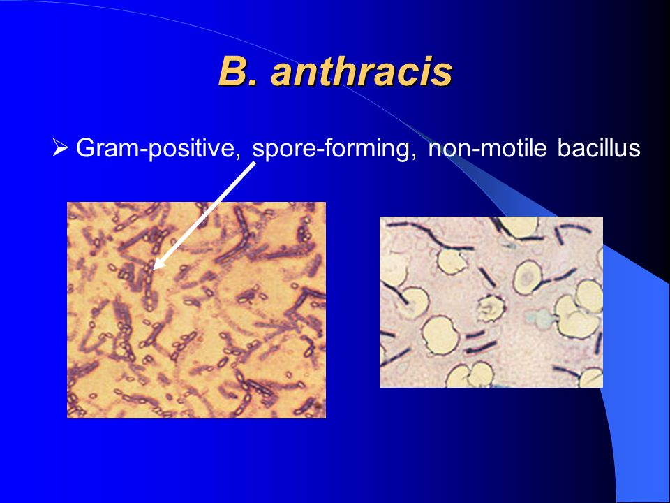 B. anthracis Gram-positive, spore-forming, non-motile bacillus