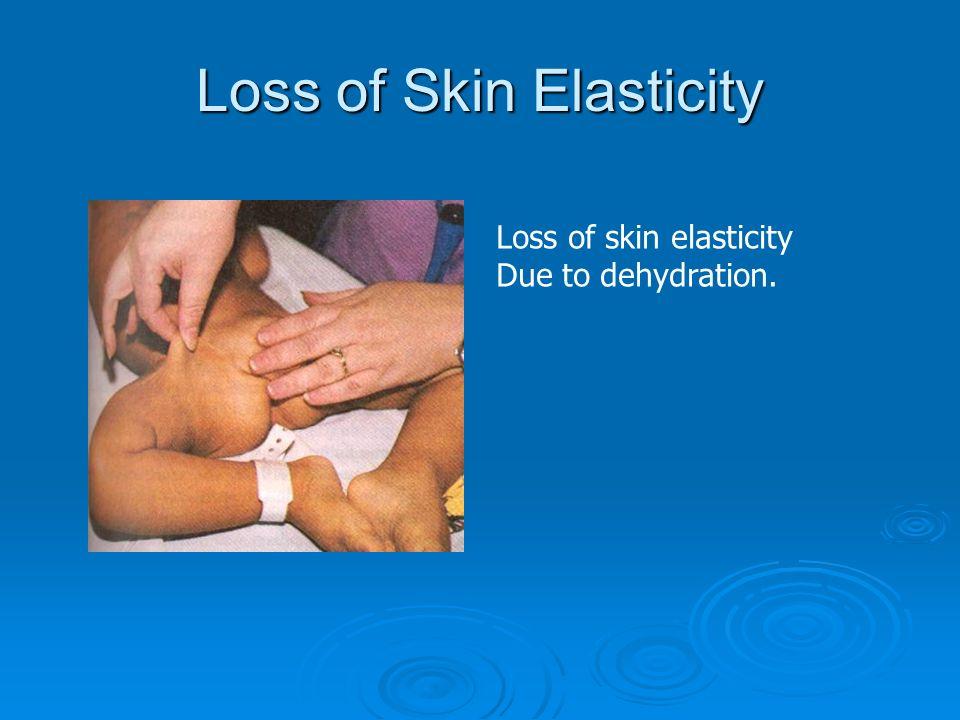 Loss of Skin Elasticity