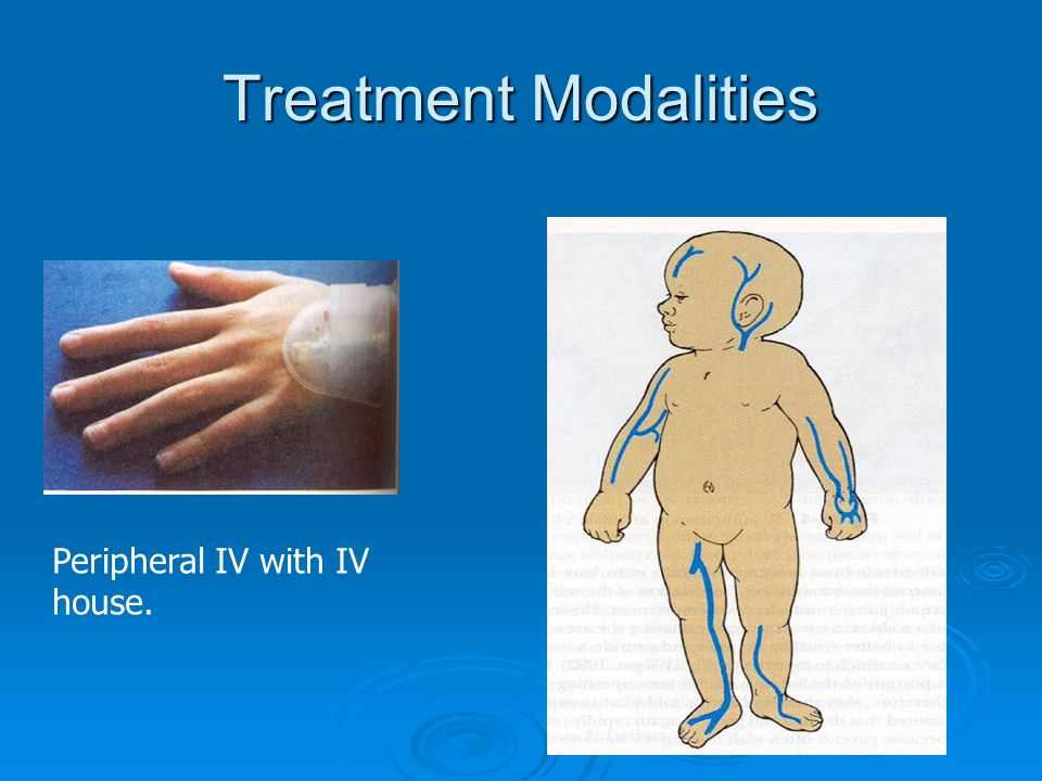 Treatment Modalities Peripheral IV with IV house.
